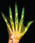 Stressed finger joints? This is another exmaple of the use of X-ray in medical diagnosis.